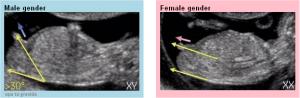 tubérculo fetal
