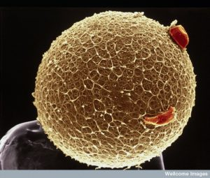 B0002100 Human egg with coronal cells - gold