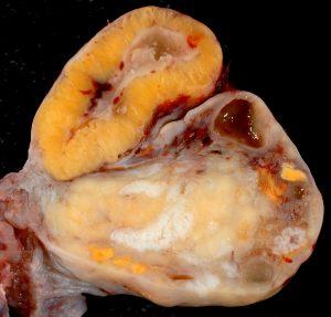 corpo lúteo pós ovulação