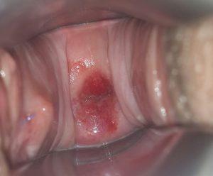 dilatacao para o parto normal (2)